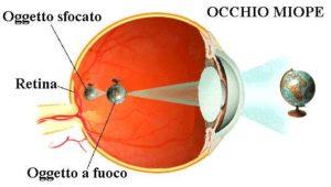 intervento di miopia con laser