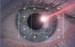 Laser oculistica
