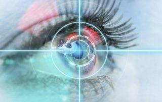 intervento miopia