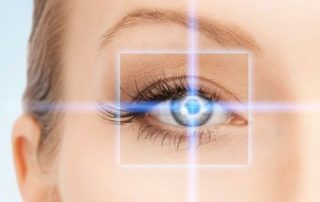 laser miopia oculista
