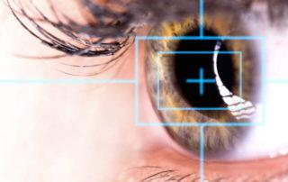chirurgia laser occhi