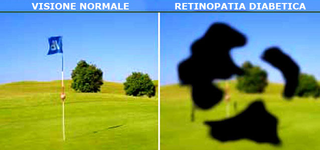 retinopatia diabertica