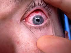 congiuntivite allergica, oculista